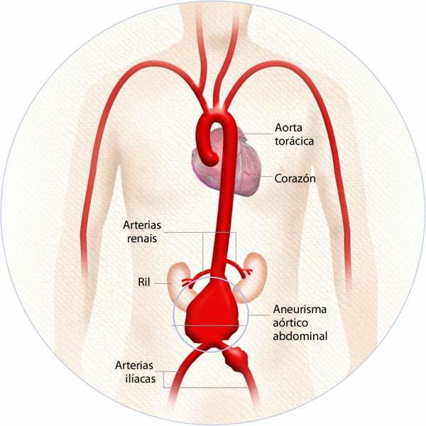 Photo of A abordaxe do aneurisma de aorta no CHUO